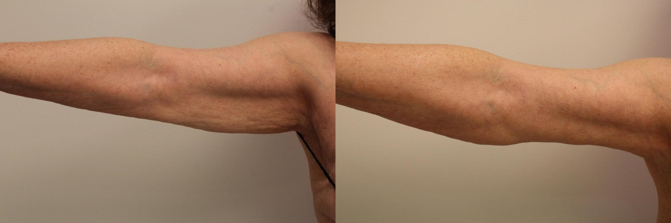 Arm Lift (Brachioplasty) Case 112 Before & After Front | Barrington, Illinois | Renee Burke, MD