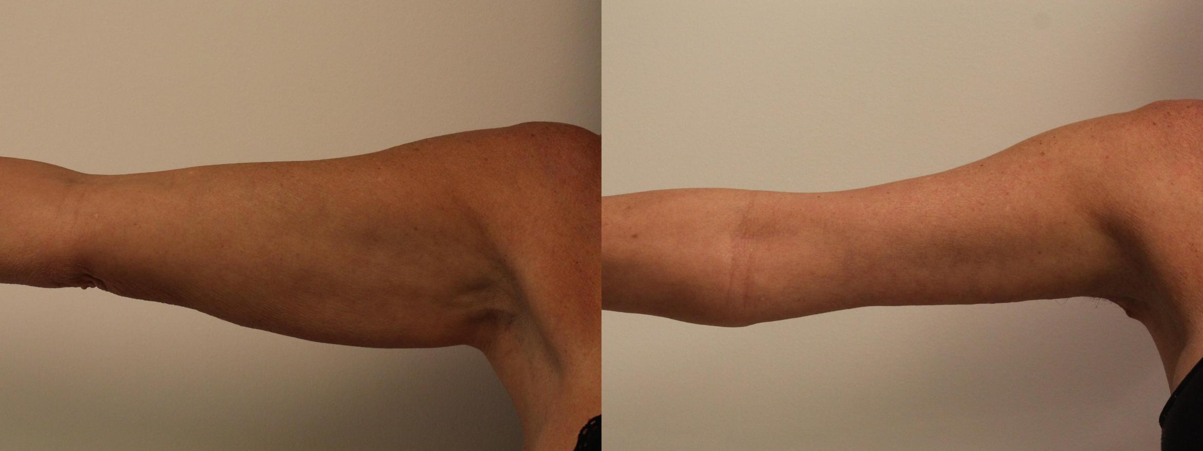 Arm Lift (Brachioplasty) Case 135 Before & After Front | Barrington, Illinois | Renee Burke, MD