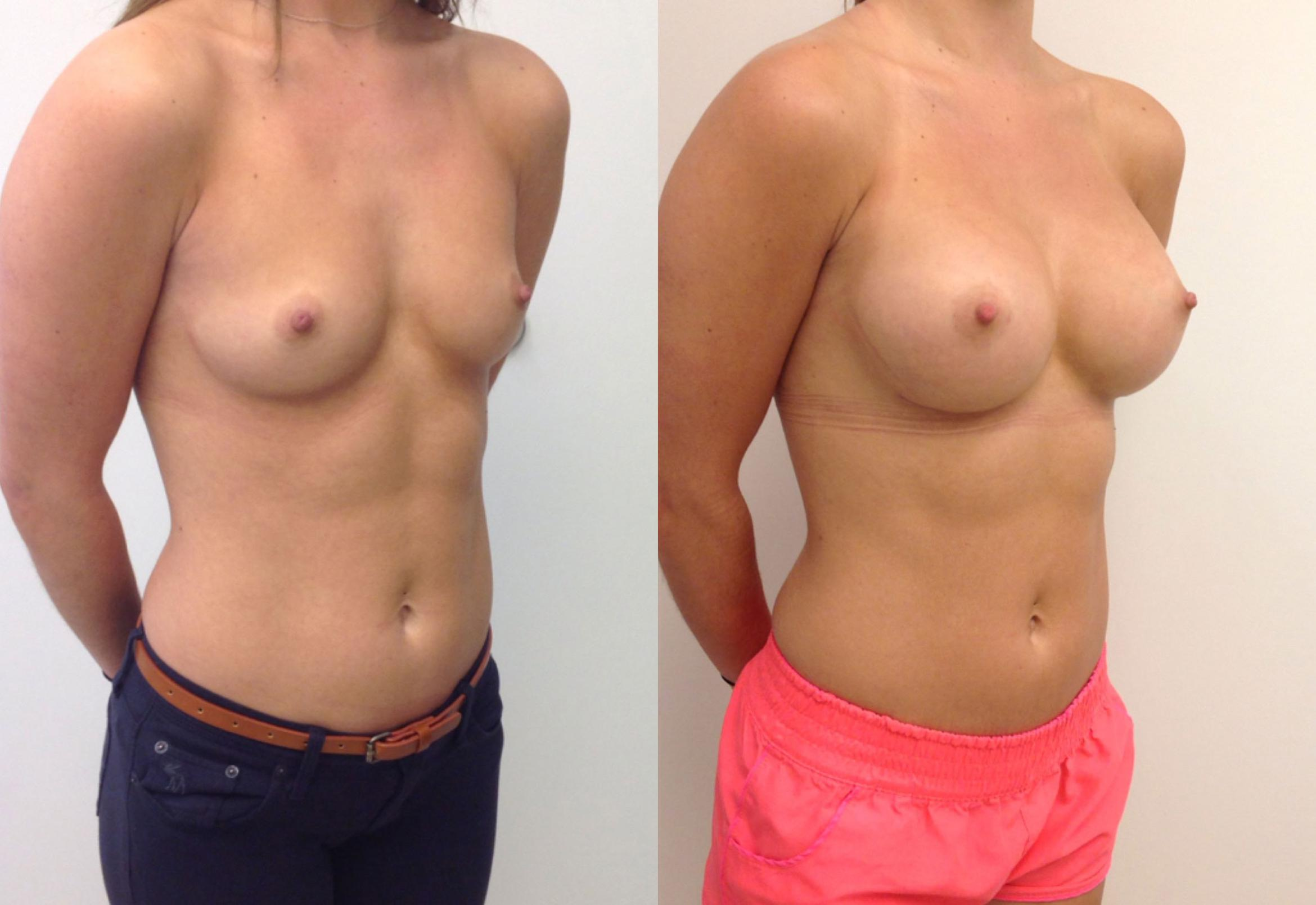 Small Volume Increase Breast Augmentation