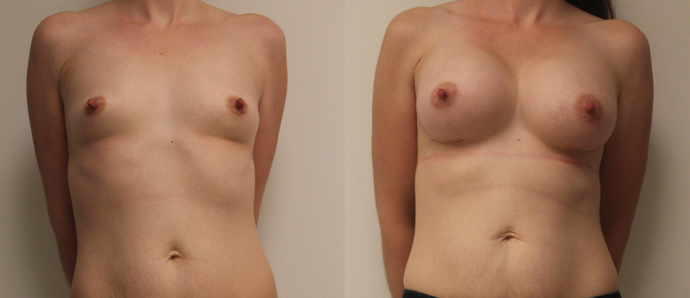 Breast Augmentation Case 30 Before & After View #1 | Barrington, Illinois | Renee Burke, MD