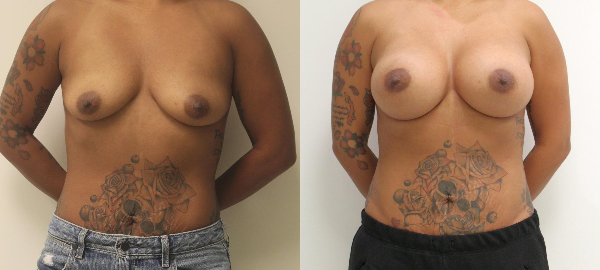 Breast Augmentation Case 32 Before & After View #1 | Barrington, Illinois | Renee Burke, MD
