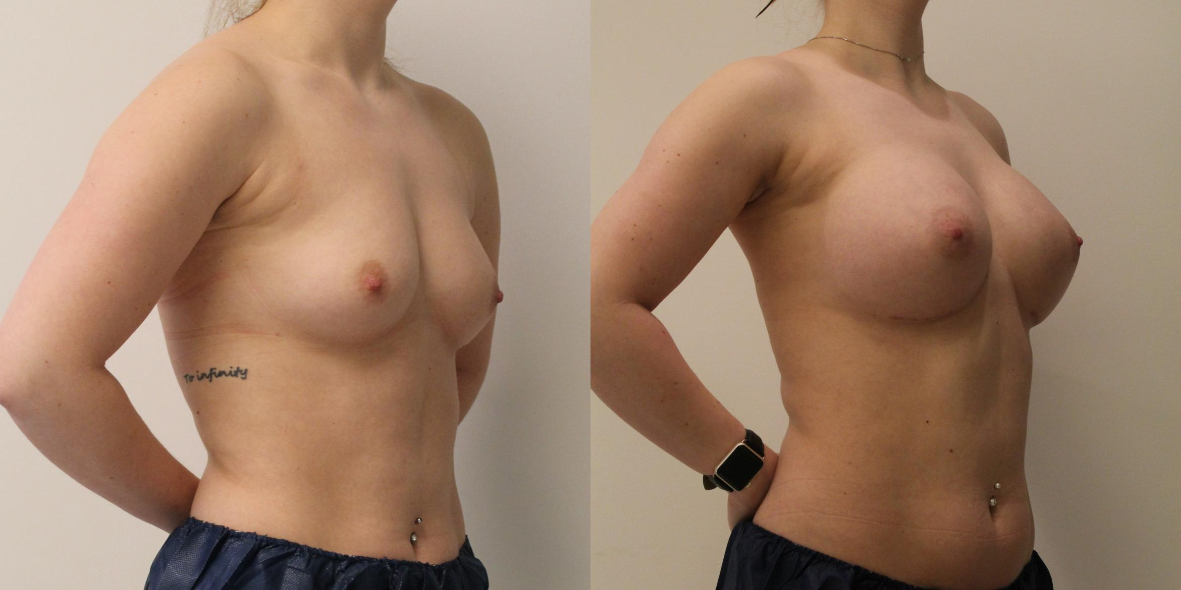 Breast Augmentation Round Shape Case
