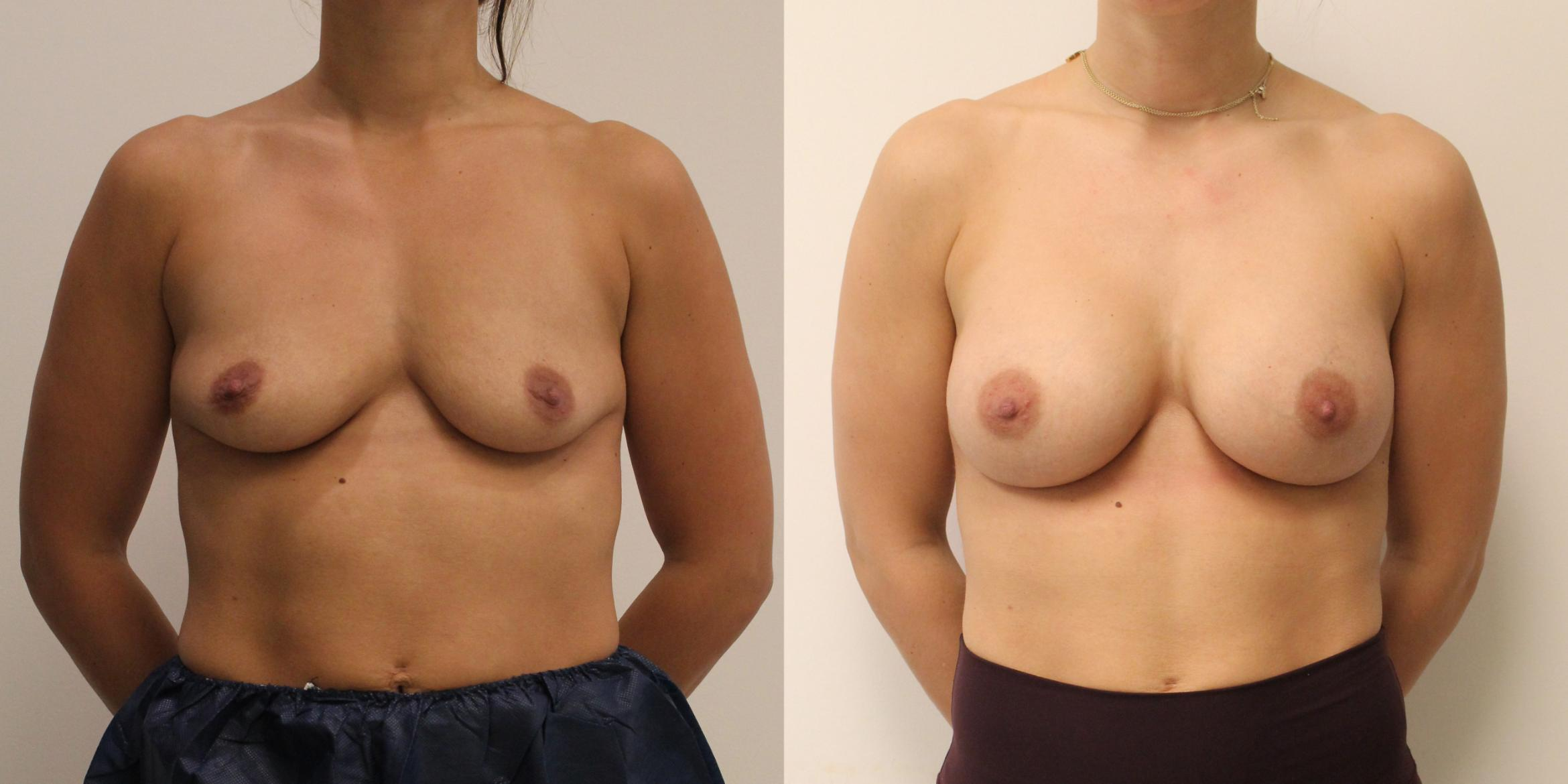 Breast Augmentation Case 59 Before & After View #1 | Barrington, Illinois | Renee Burke, MD