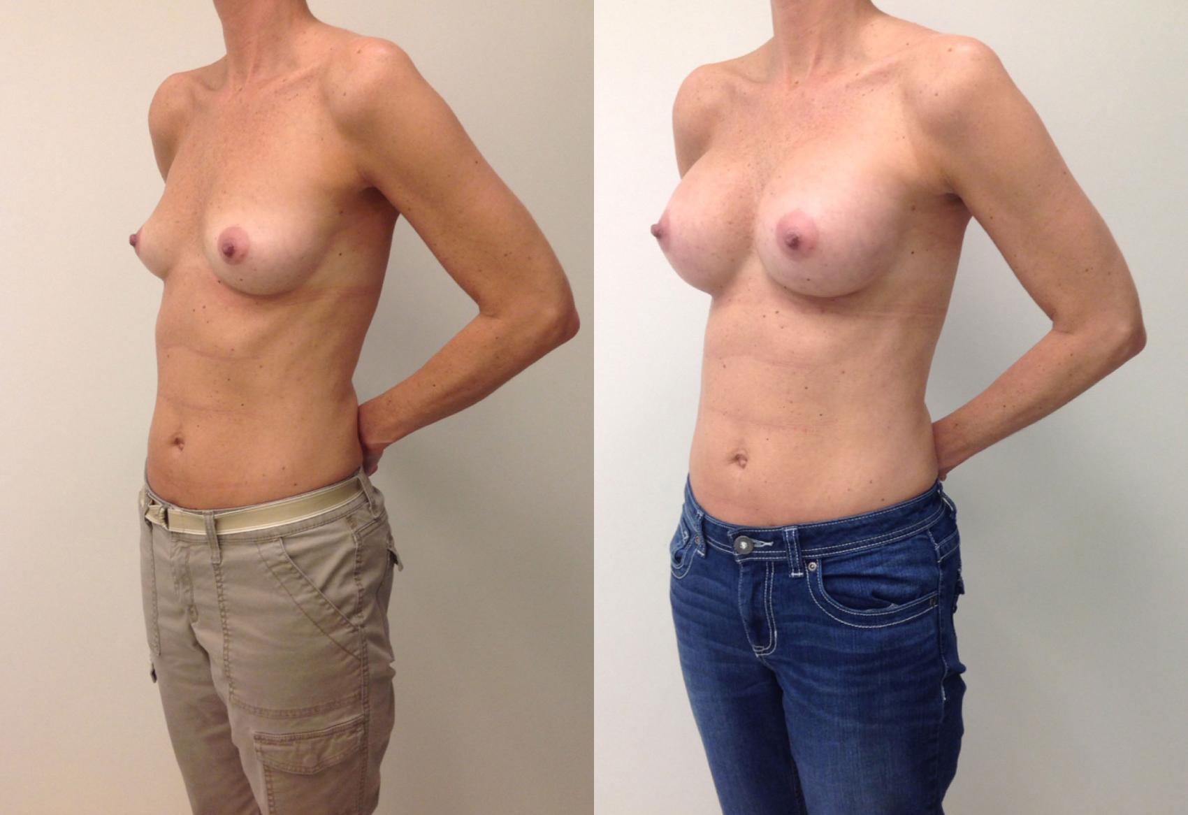 Breast augmentation results in richmond, va