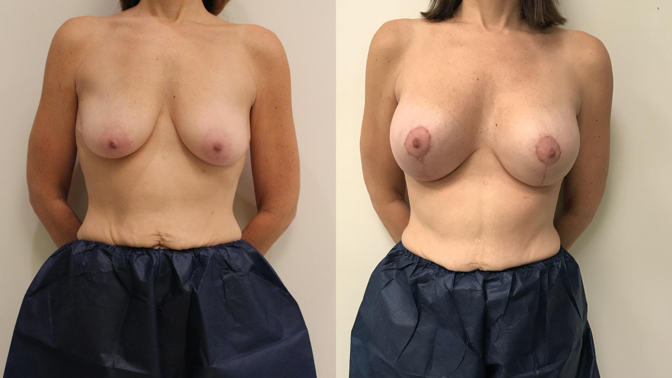 Breast Augmentation Case 93 Before & After Front | Barrington, Illinois | Renee Burke, MD