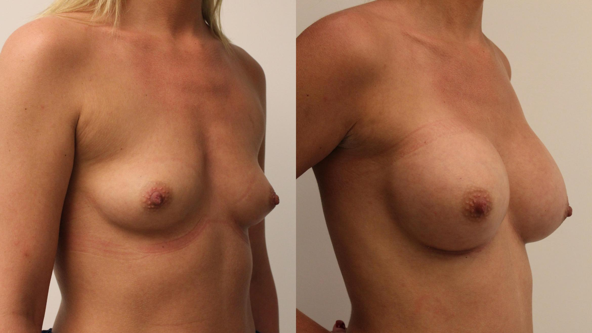 Breast Augmentation Case 97 Before & After Right Oblique | Barrington, Illinois | Renee Burke, MD