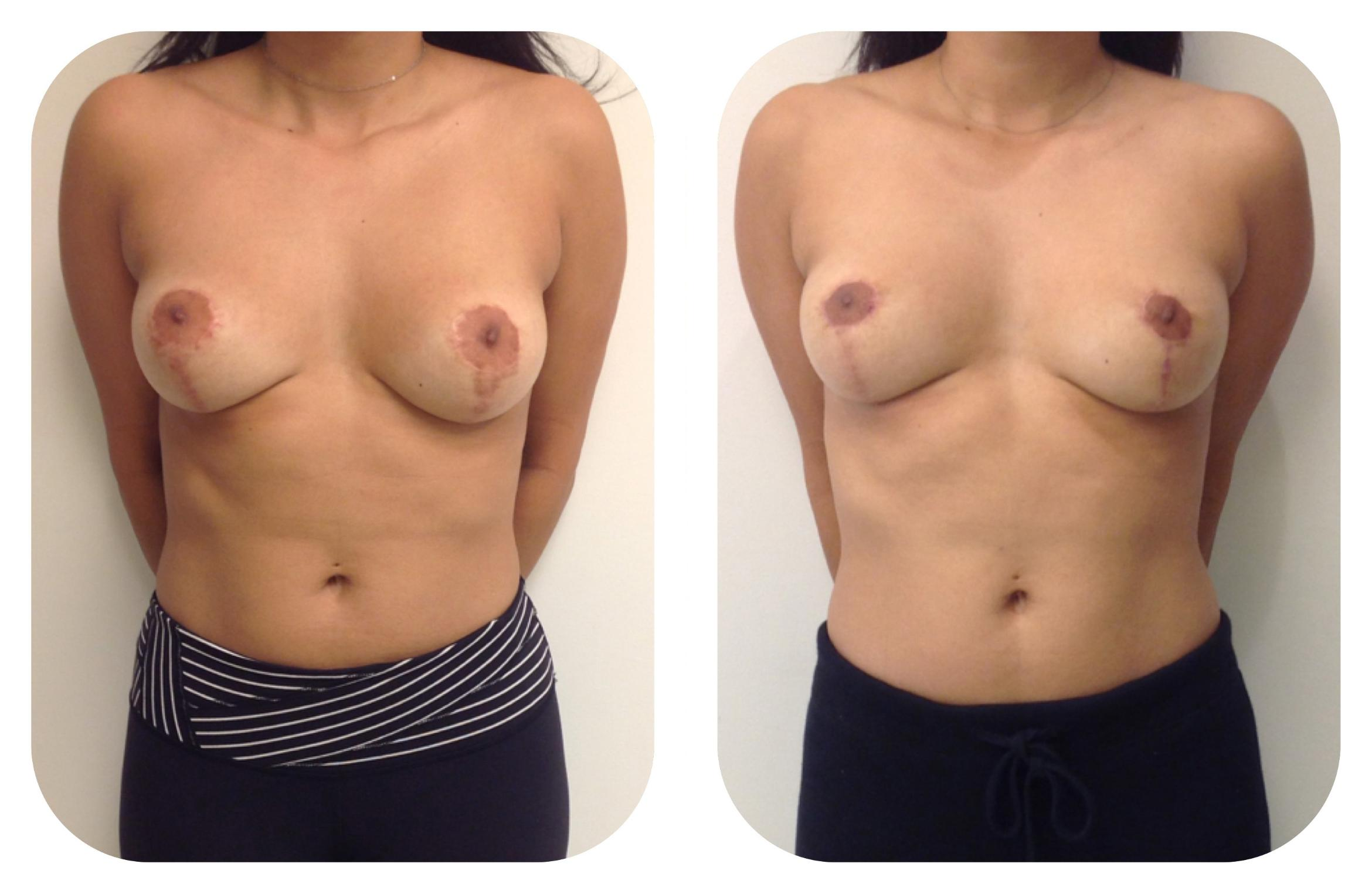 Breast Lift Case 13 Before & After View #1 | Barrington, Illinois | Renee Burke, MD