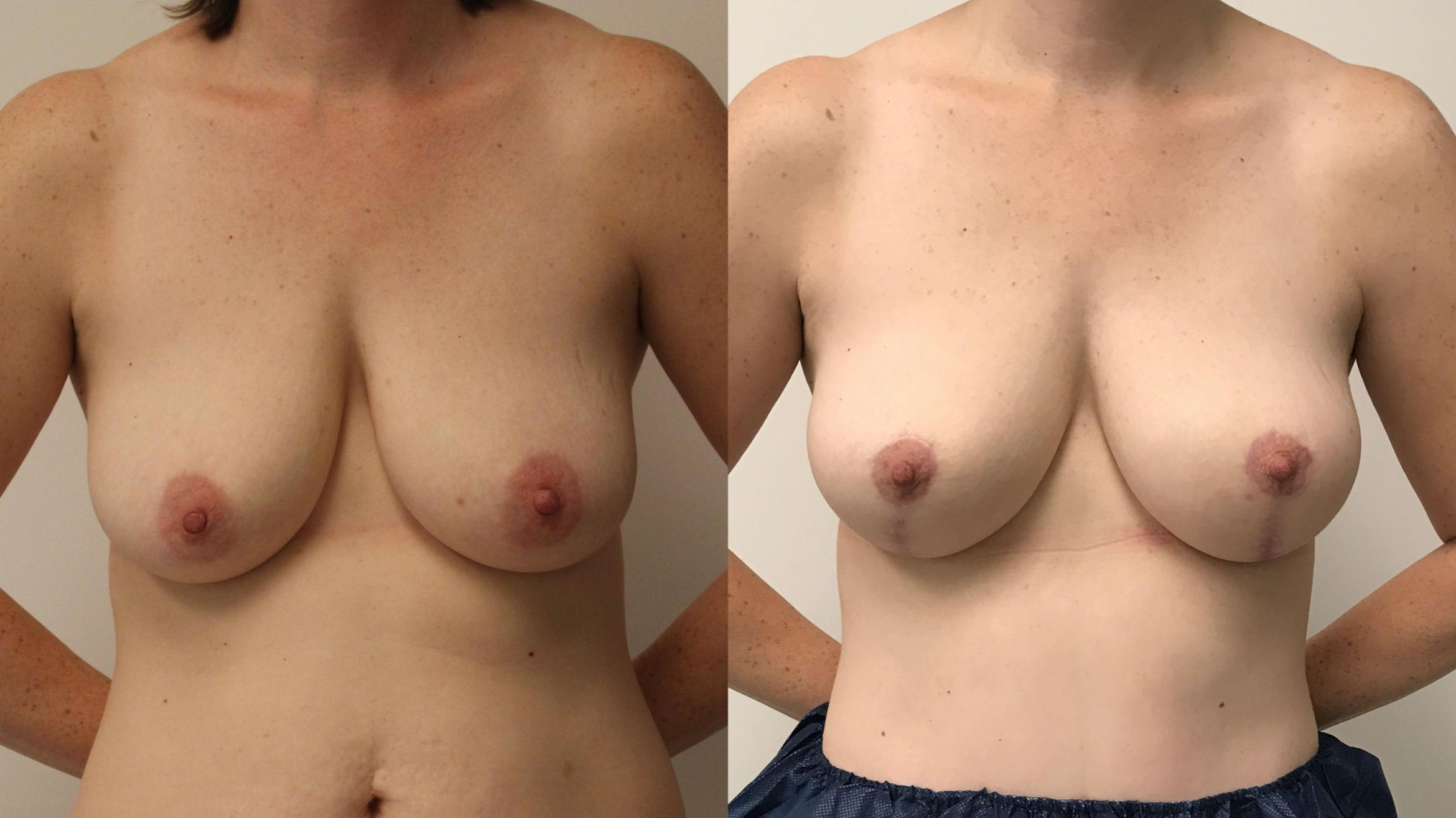 Breast Lift Case 98 Before & After Front | Barrington, Illinois | Renee Burke, MD