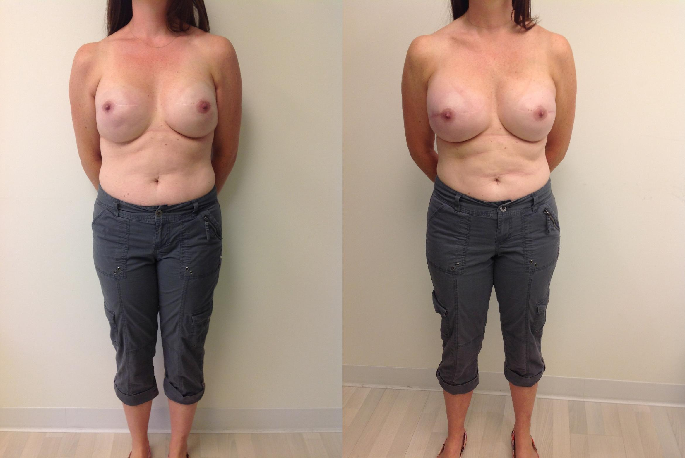 Breast Reconstruction Case 14 Before & After View #1 | Barrington, Illinois | Renee Burke, MD