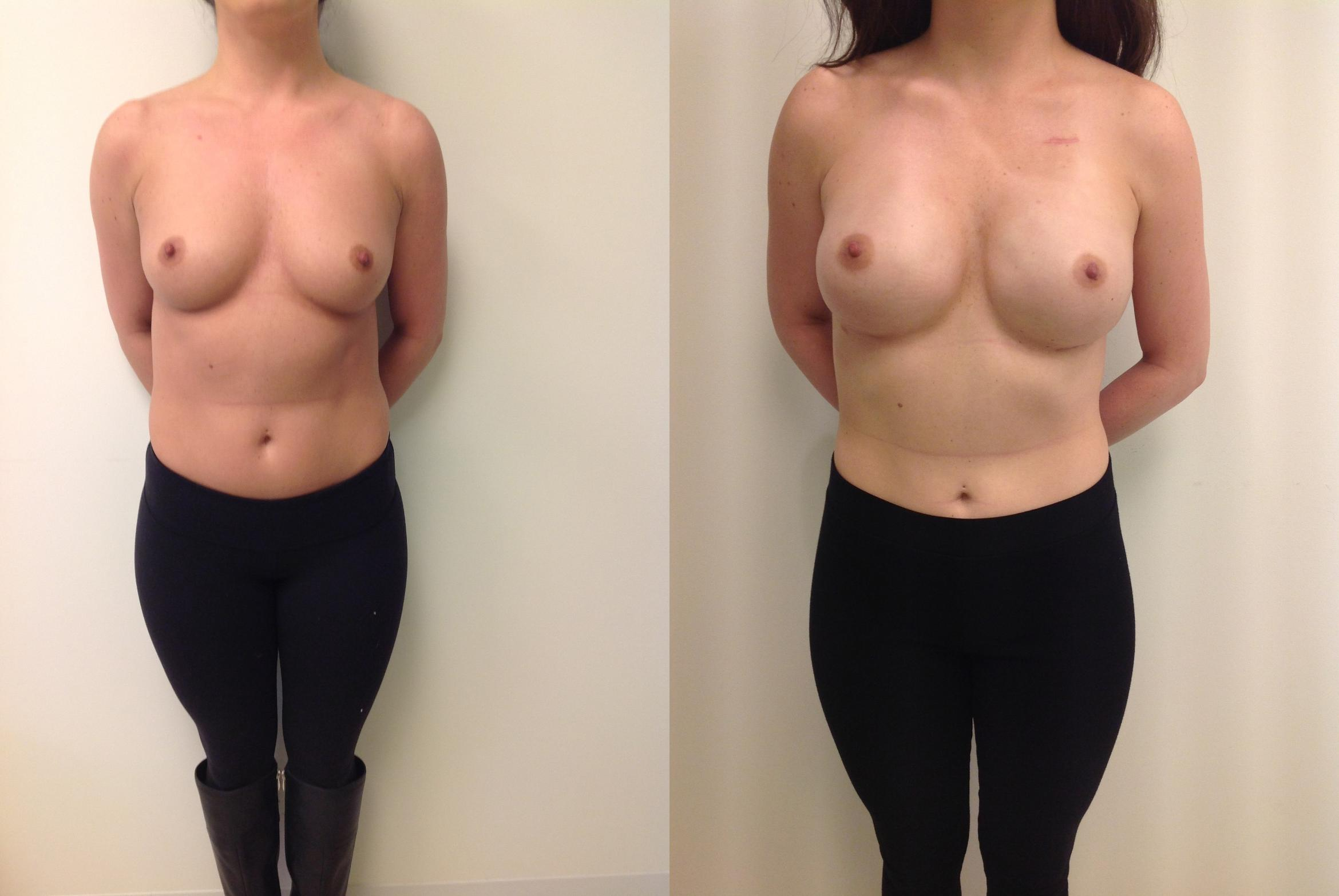 Breast Reconstruction Case 15 Before & After View #1 | Barrington, Illinois | Renee Burke, MD