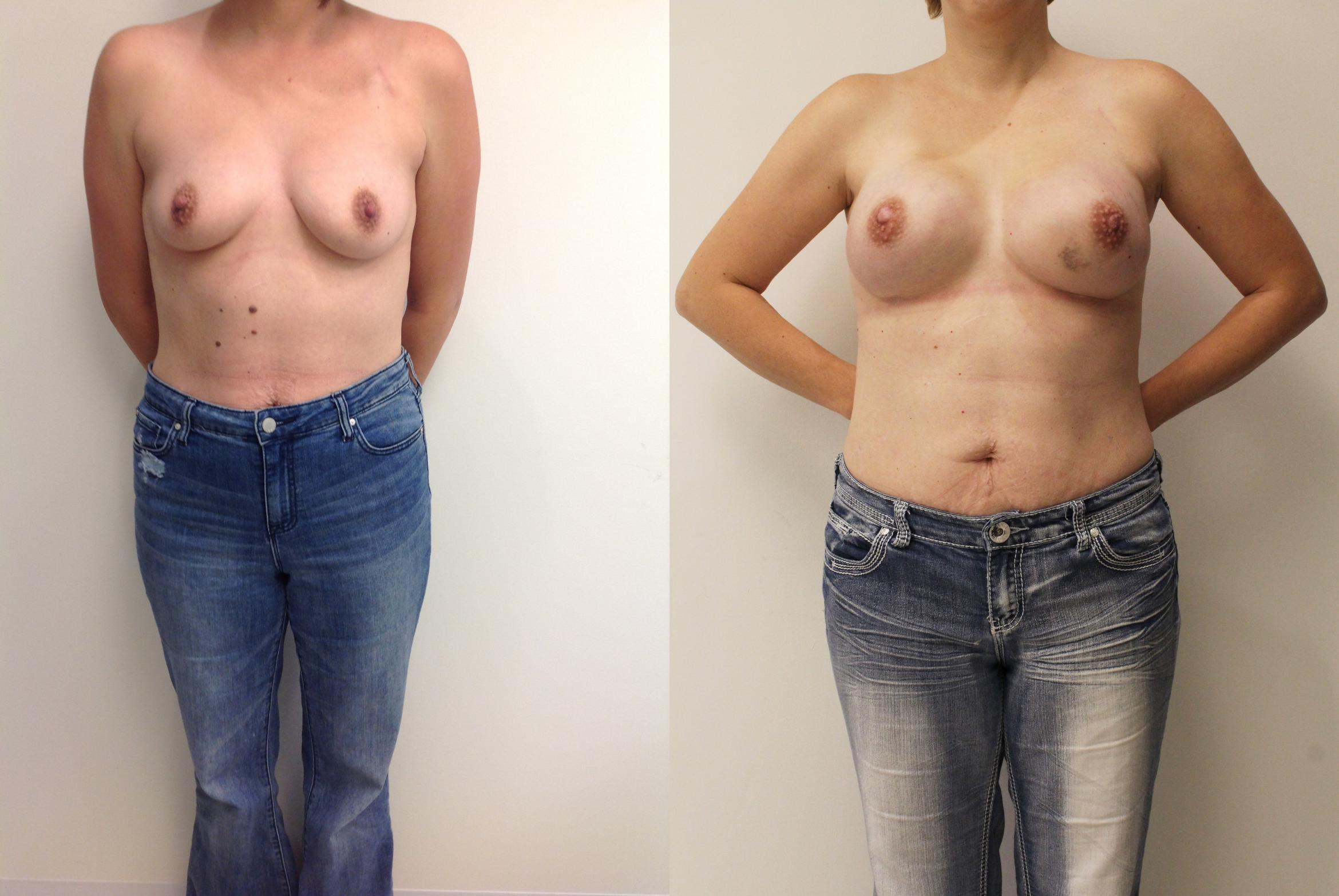 Breast Reconstruction Case 16 Before & After View #1 | Barrington, Illinois | Renee Burke, MD