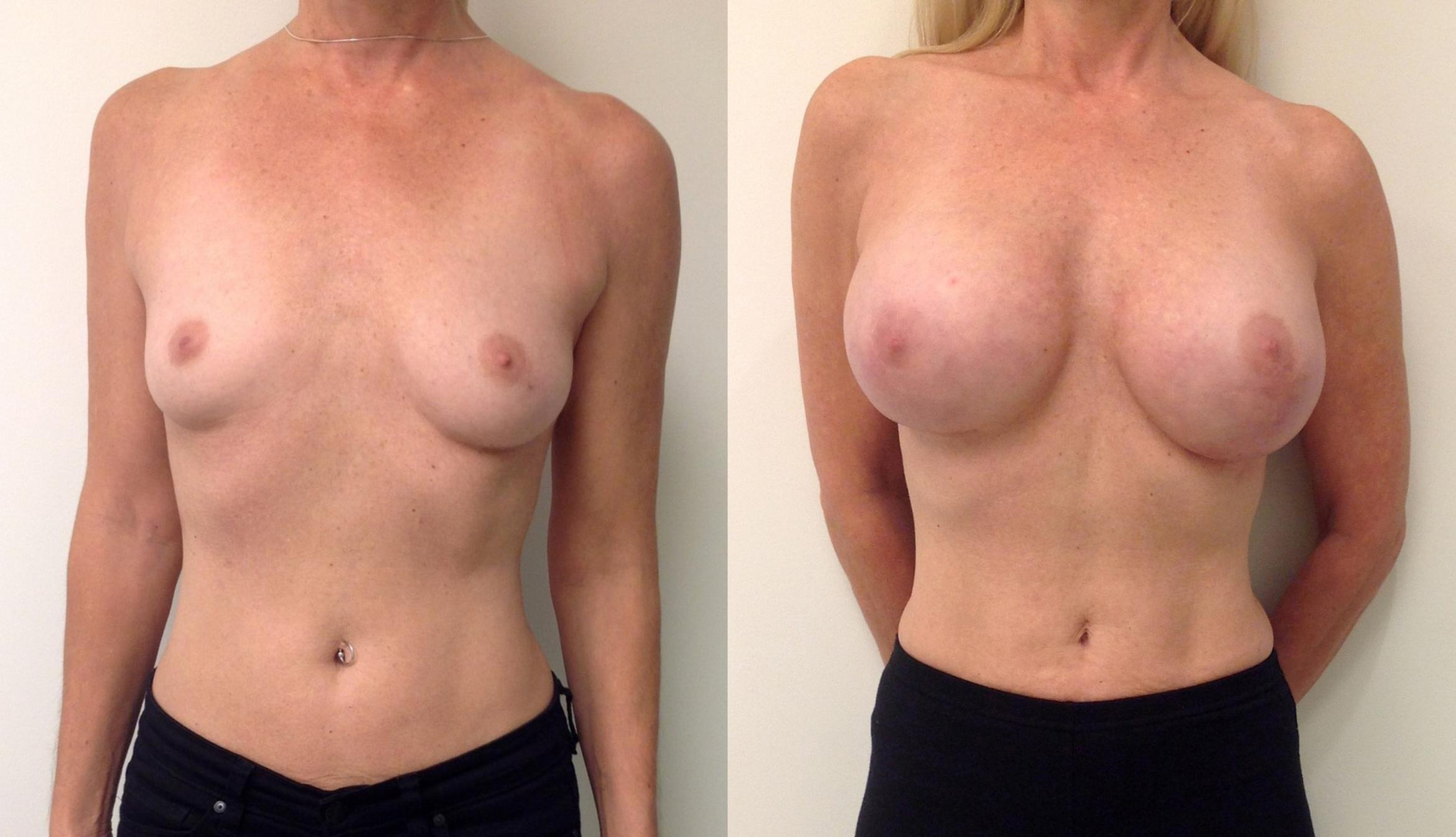 Dc Model Becomes First Double Mastectomy To Model In Sports Illustrated