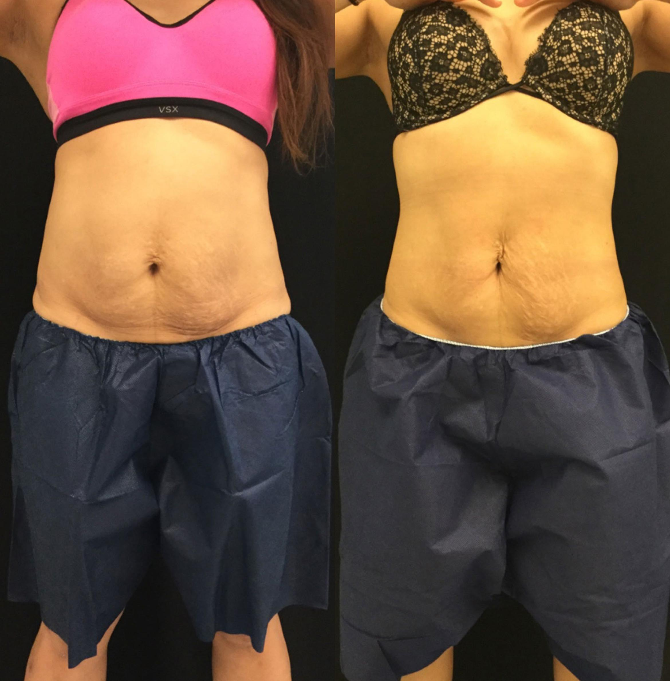 Coolsculpting Case 7 Before & After View #1 | Barrington, Illinois | Renee Burke, MD