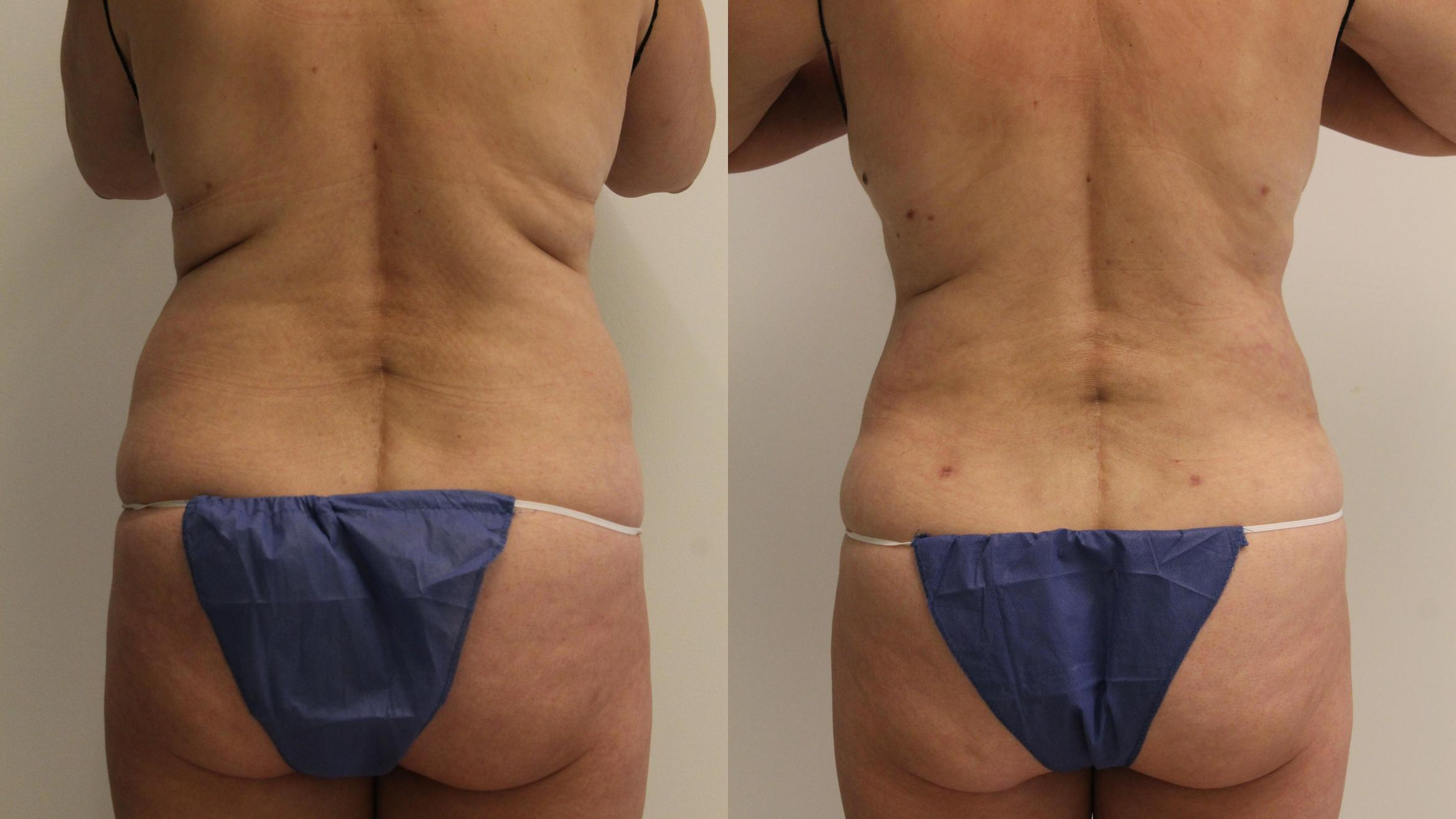 Liposuction Case 102 Before & After Back | Barrington, Illinois | Renee Burke, MD