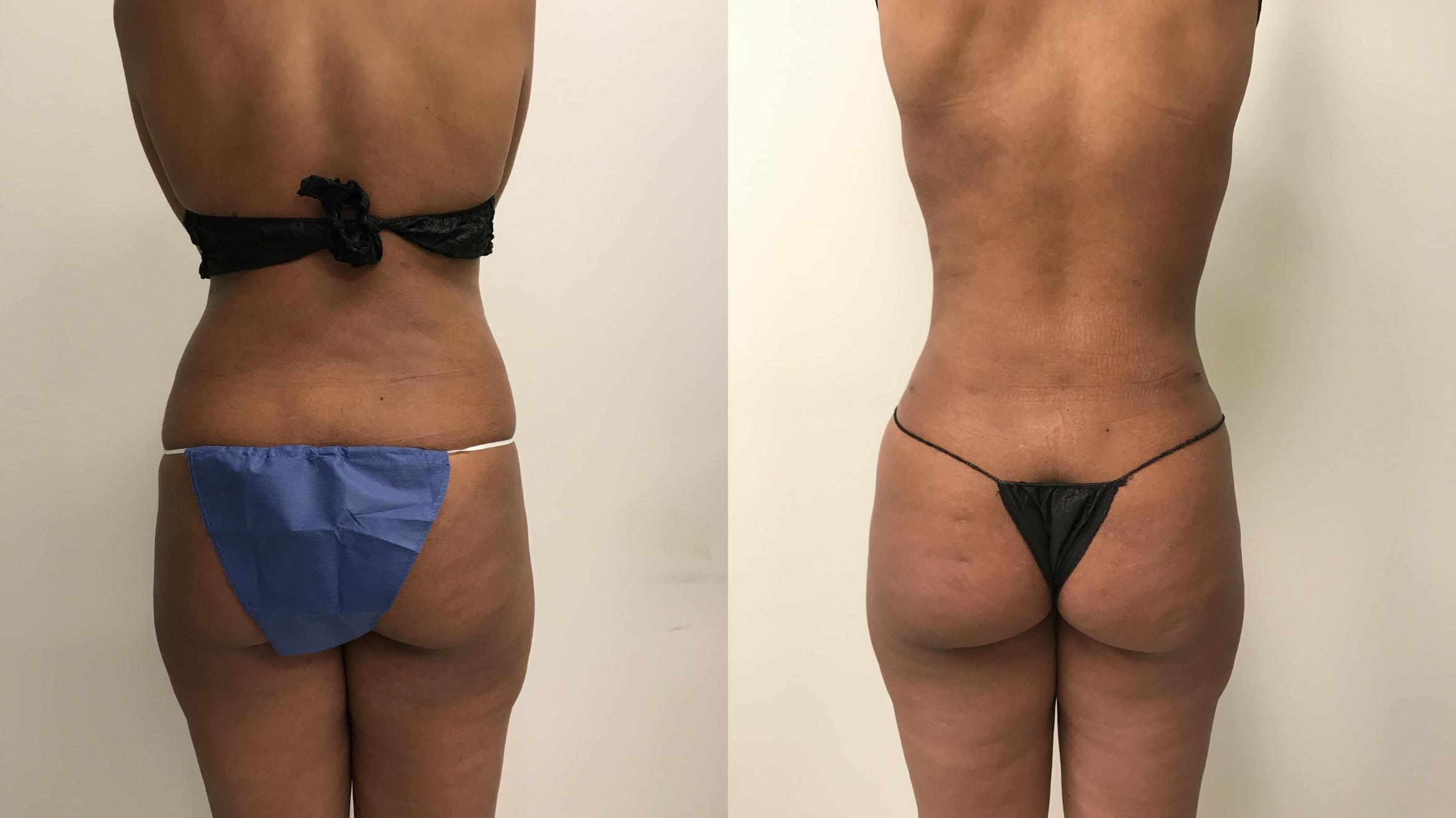 Liposuction Case 215 Before & After Back | Barrington, Illinois | Renee Burke, MD