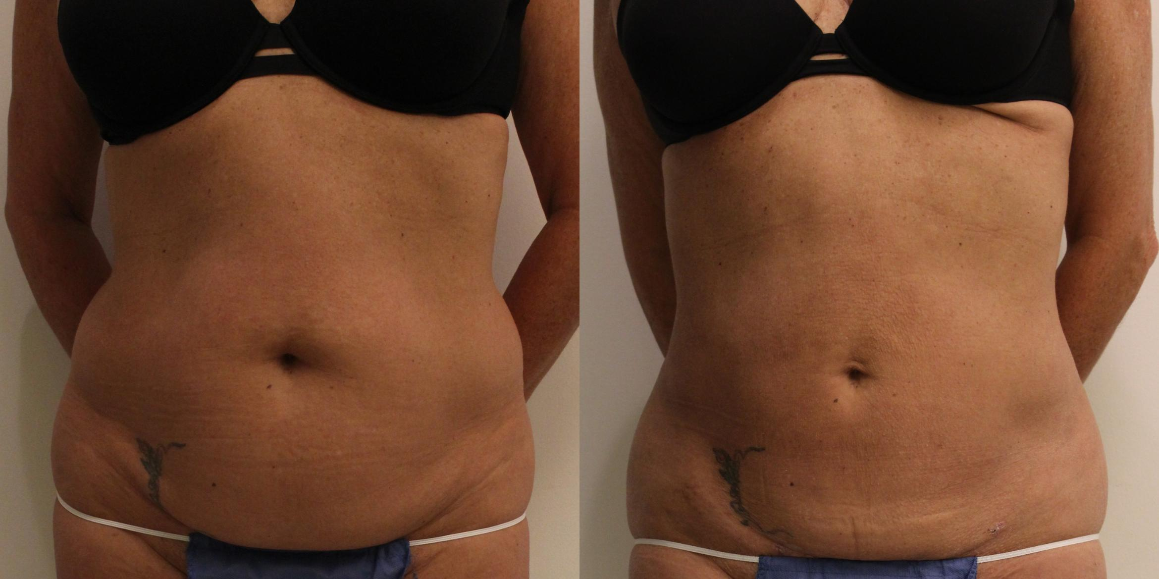 Liposuction Case 52 Before & After View #1 | Barrington, Illinois | Renee Burke, MD
