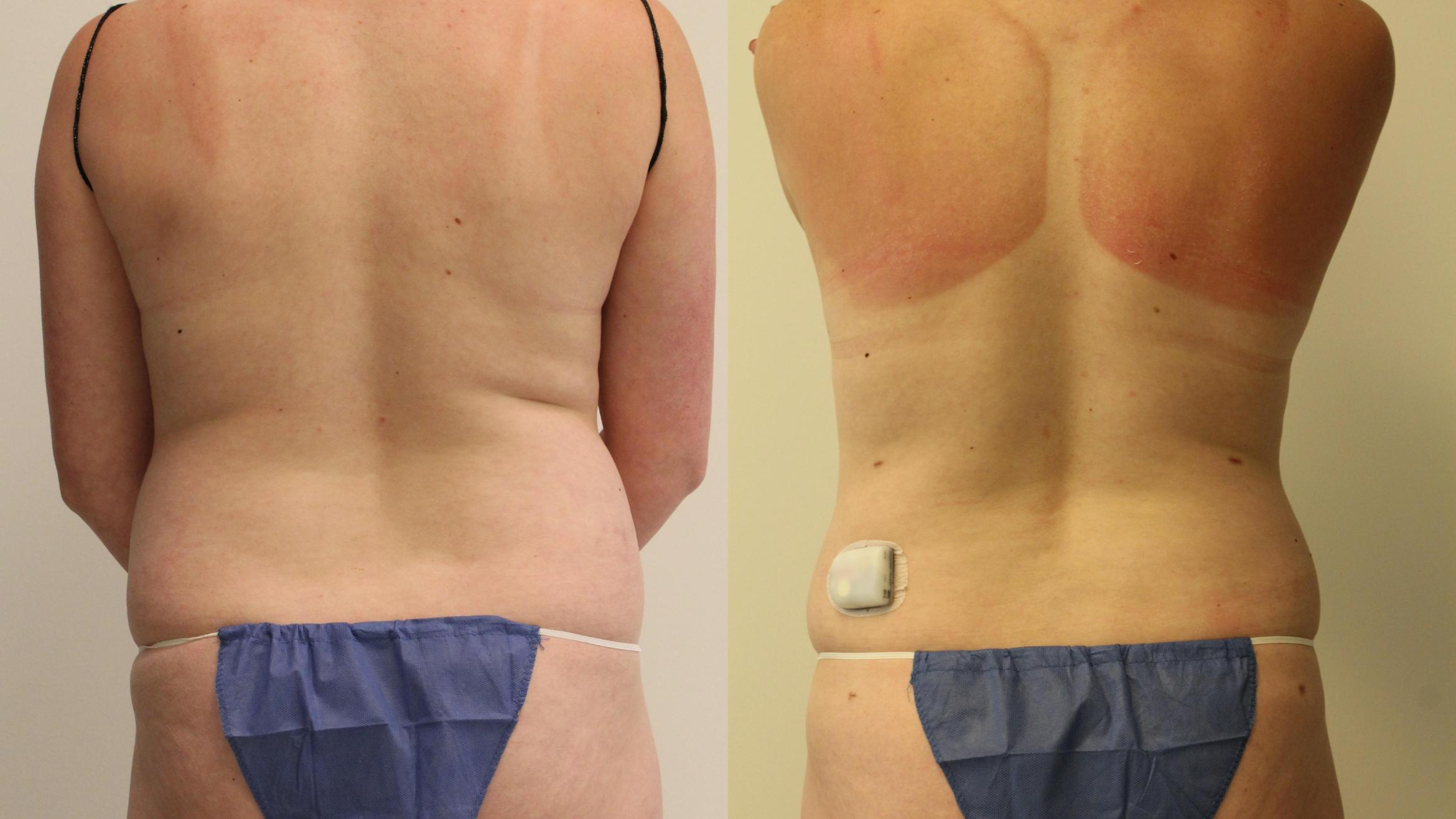 Liposuction Case 76 Before & After Back | Barrington, Illinois | Renee Burke, MD