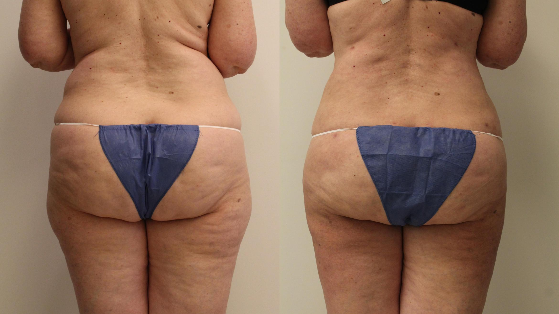Liposuction Case 94 Before & After Back | Barrington, Illinois | Renee Burke, MD
